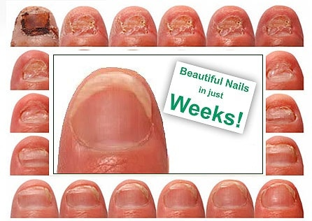 Nail Fungus Why Does It Occur How To Get Rid Of Nail Fungus